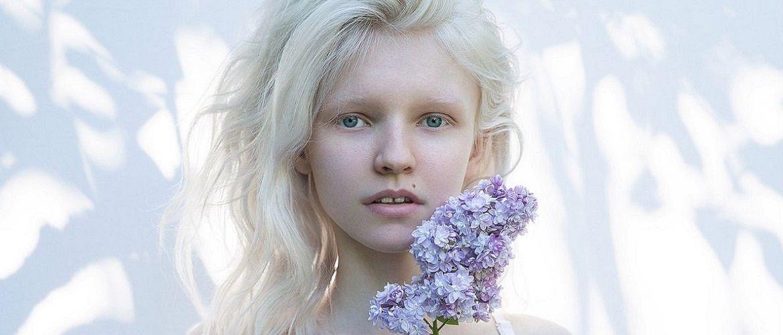 Не такие, как все. Дети-альбиносы и их особенная жизнь