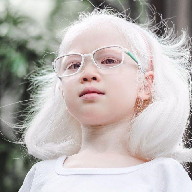 дети альбиносы