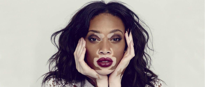 9 моделей, які руйнують звичні стандарти краси