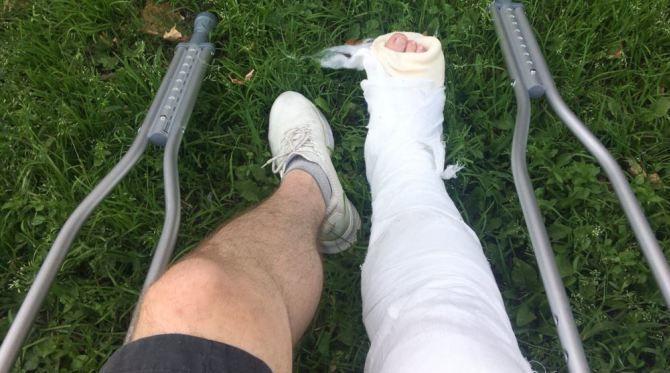 костыли перелом ноги