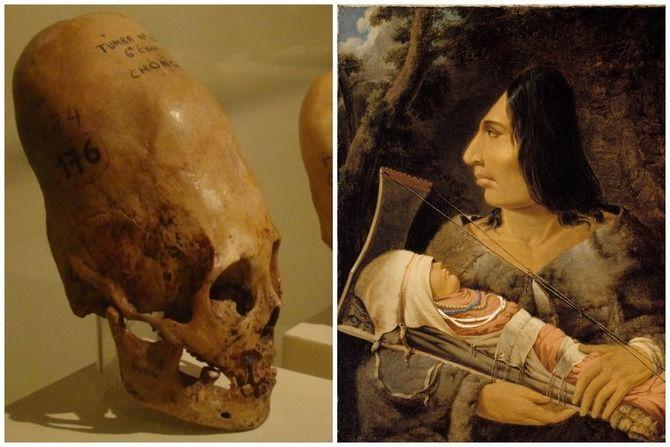 деформований череп