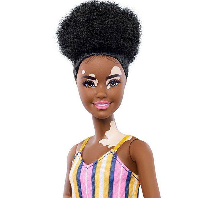 Кукла с витилиго