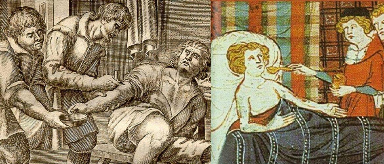 Лікар або чаклун: як в минулому лікували і нівечили пацієнтів