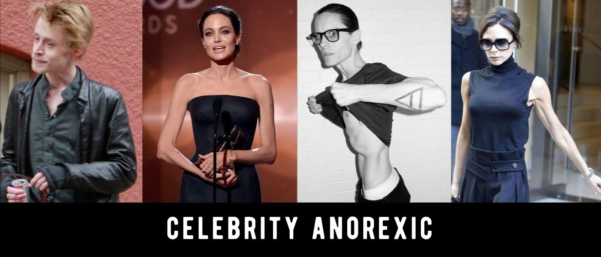 Celebrities who suffered from anorexia