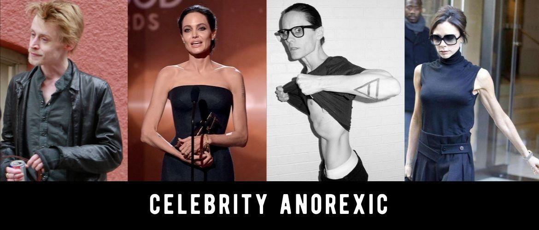 Звезды, которые страдали анорексией, а некоторые так и не смогли ее победить