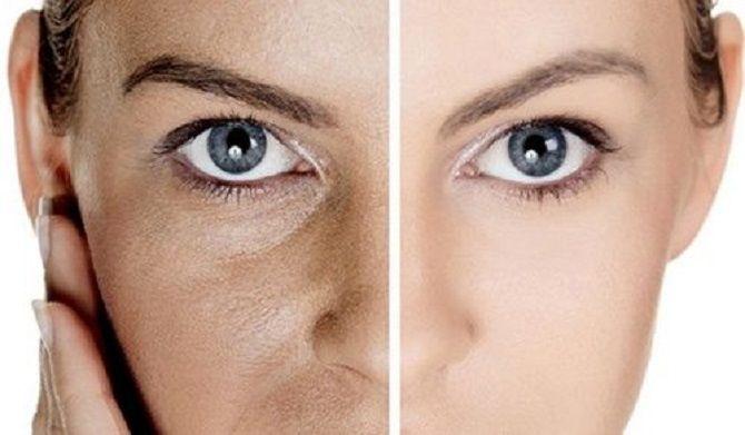 Идеальная кожа: эффективные способы борьбы с расширенными порами 1