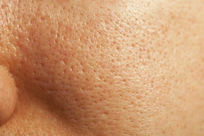Идеальная кожа: эффективные способы борьбы с расширенными порами 2