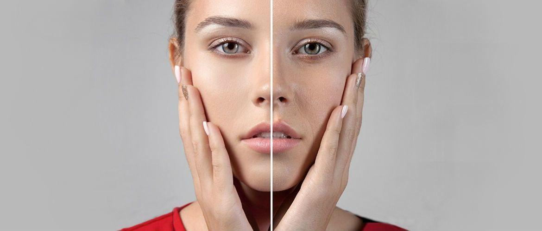 Идеальная кожа: эффективные способы борьбы с расширенными порами