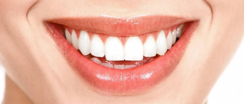 6 эффективных способов создания красивой улыбки