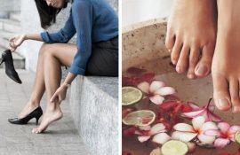 10 простых способов снять отеки ног в домашних условиях
