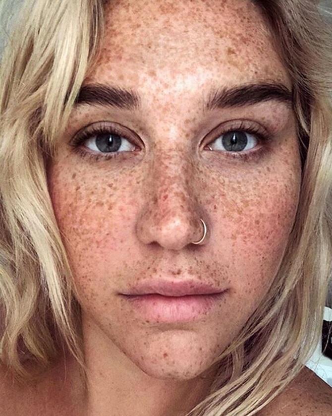 Літня пігментація: боремося з плямами на обличчі 1