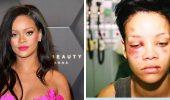 5 зіркових жертв домашнього насильства