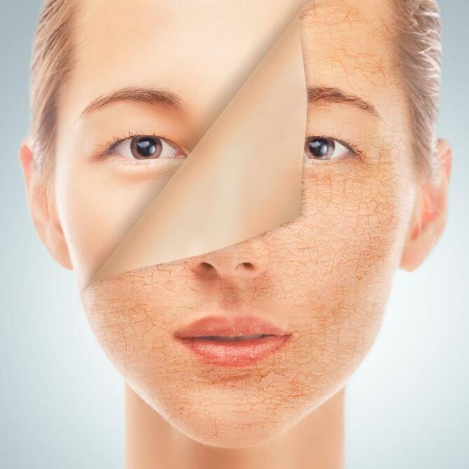 Попрощайтесь с сухой кожей: правильный уход за лицом летом 1