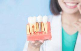 Показания к проведению костной пластики, возможные альтернативы при имплантации зубов