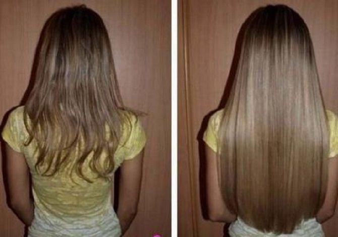 Рицинова олія: гарне волосся і молодість шкіри 6