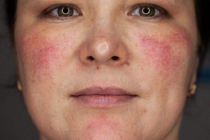 Зневоднена шкіра: ознаки і правила догляду за нею 4