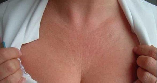 Правильный уход за шеей: как сохранить молодость и упругость кожи 3