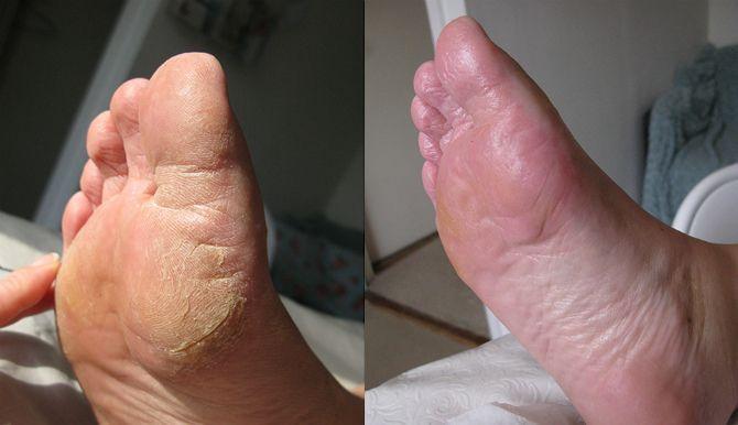 Домашний спа-салон для ног: расслабляющие и лечебные ванночки 8