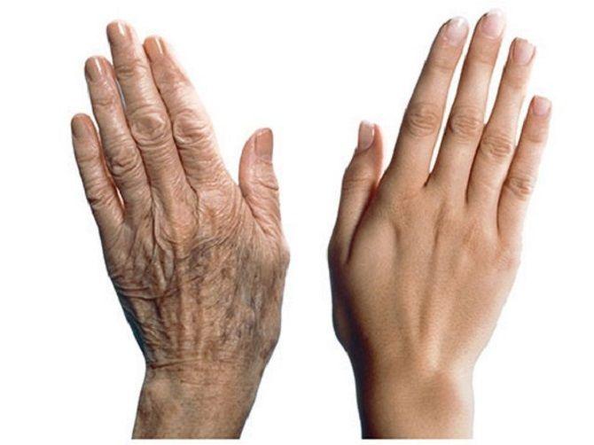 В'яла шкіра рук – як повернути і надовго зберегти їх молодість 1