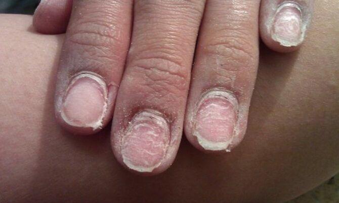 5 шагов к здоровым ногтям после шеллака 2