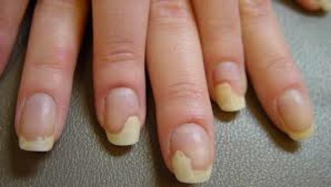 5 шагов к здоровым ногтям после шеллака 3