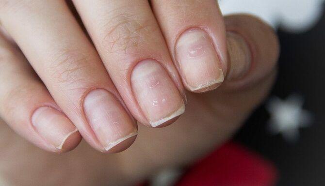 5 шагов к здоровым ногтям после шеллака 4