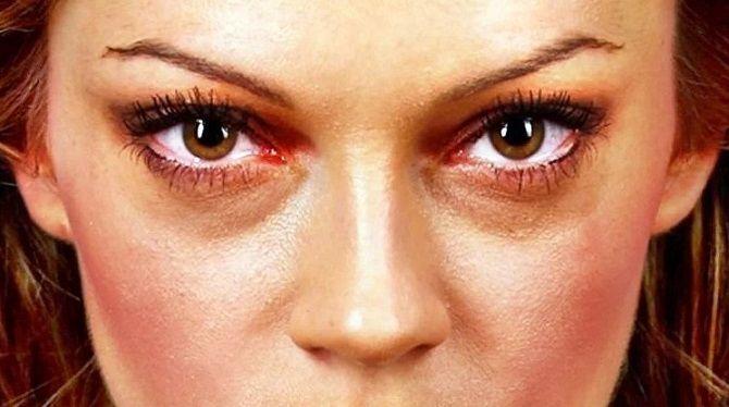 Боремося з «ефектом панди» або Як позбутися темних кіл під очима: ефективні засоби і косметологія 1