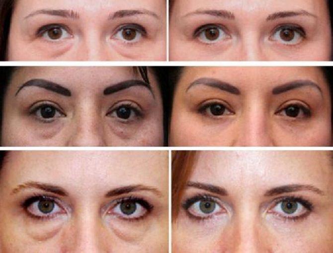 Боремося з «ефектом панди» або Як позбутися темних кіл під очима: ефективні засоби і косметологія 10