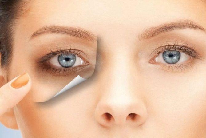 Боремося з «ефектом панди» або Як позбутися темних кіл під очима: ефективні засоби і косметологія 13