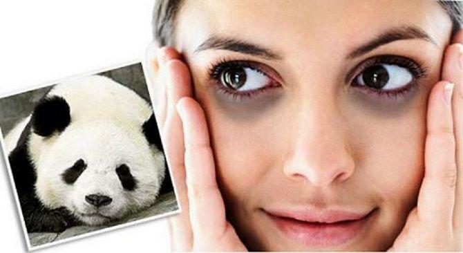 Боремося з «ефектом панди» або Як позбутися темних кіл під очима: ефективні засоби і косметологія 15