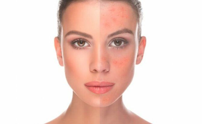 Советы экспертов: как ухаживать за чувствительной кожей 1