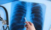Поздравления с Днем рентгенолога – стихи, картинки, проза