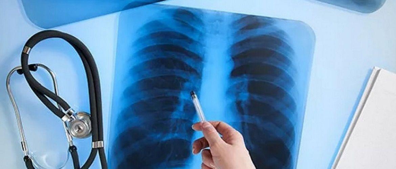 Привітання з Днем рентгенолога – вірші, картинки, проза