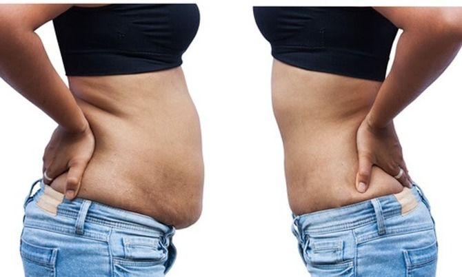 Прощавай непроханий живіт: як розтопити жир внизу живота й зробити його пласким 1
