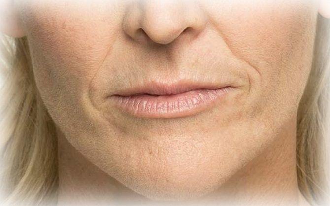 Кисетні зморшки: як впоратися зі складочками навколо рота 1