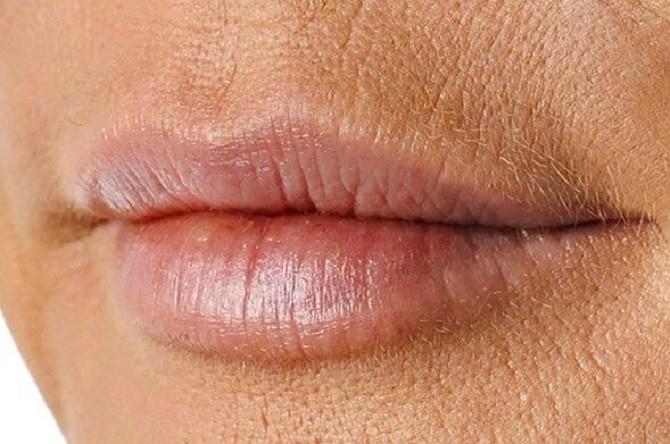 Кисетні зморшки: як впоратися зі складочками навколо рота 2