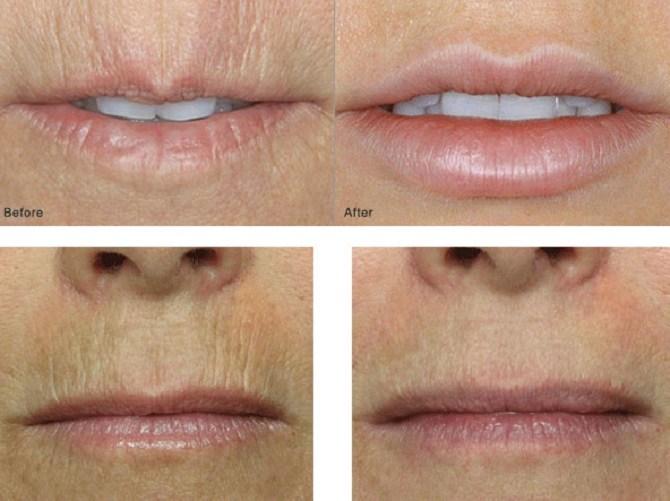 Кисетні зморшки: як впоратися зі складочками навколо рота 8
