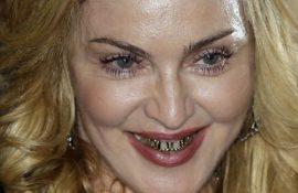 Знаменитості з «неправильними» зубами