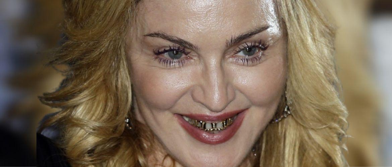 Знаменитости с «неправильными» зубами