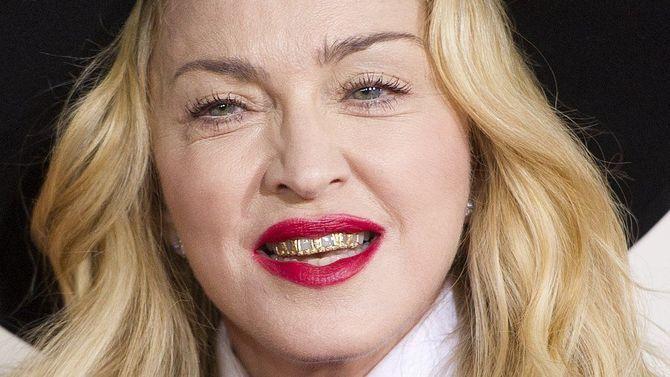 Знаменитости с «неправильными» зубами 5