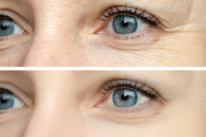 Масаж навколо очей: не пошкодуйте 5 хвилин заради пружної шкіри 1