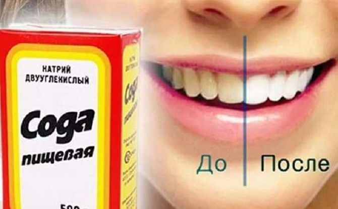 Білосніжні та здорові зуби: 15 крутих лайфхаків, як відбілити зуби в домашніх умовах 6