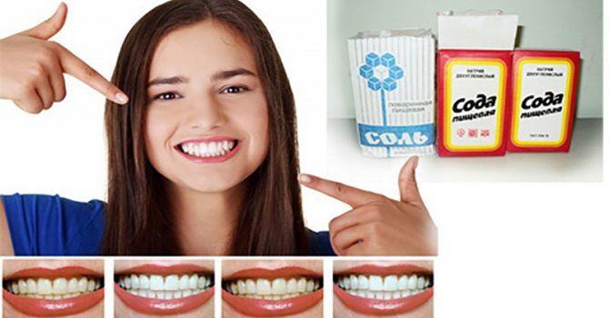 Білосніжні та здорові зуби: 15 крутих лайфхаків, як відбілити зуби в домашніх умовах 7