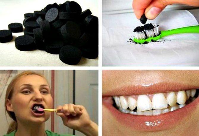 Білосніжні та здорові зуби: 15 крутих лайфхаків, як відбілити зуби в домашніх умовах 14
