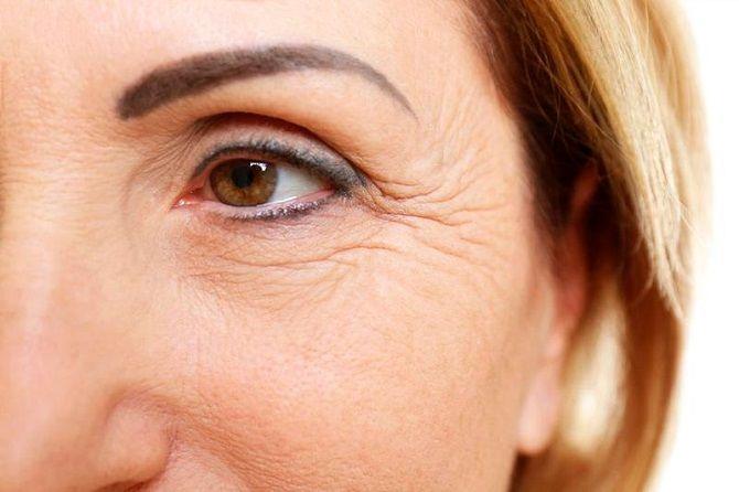 Як стрес впливає на шкіру або Чому не можна нервувати 2