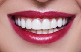 Белоснежные и здоровые зубы: 15 крутых лайфхаков, как отбелить зубы в домашних условиях