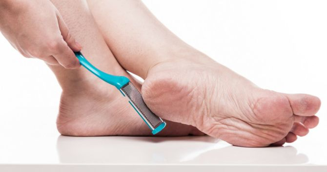 Как не запустить свои стопы: 6 шагов к ухоженным ножкам 4