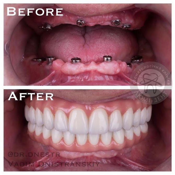 Революция в стоматологии — что изменилось в 2021 году? 4