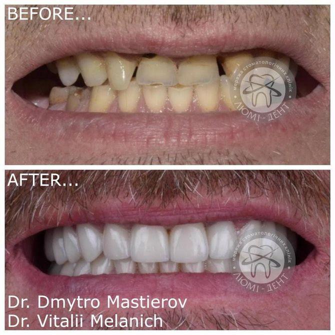 Революция в стоматологии — что изменилось в 2021 году? 2