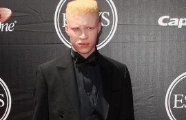 Знаменитости, которые живут с альбинизмом и поражают своей красотой